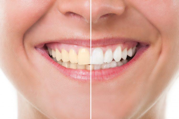 clareamento dental ortocenter